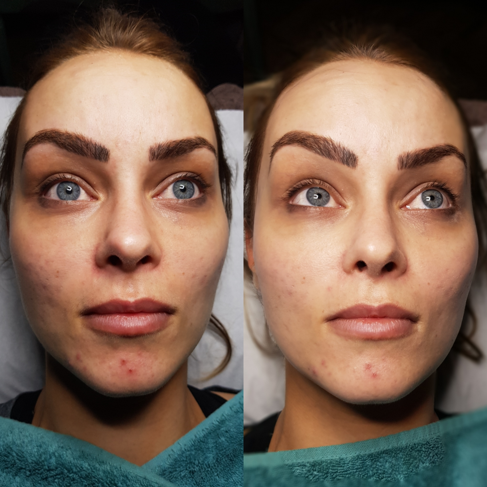 Semi Permanent Foundation Treatment Meso BB Glow Jinc
