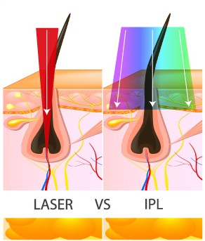 Laser Hair Removal Ipswich